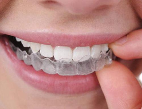 ¿Sufres bruxismo? Como puede ayudarte tu dentista