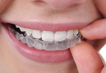 Férulas de descarga También conocida como férula de estabilización o de desprogramación clinica dental omega torremolinos