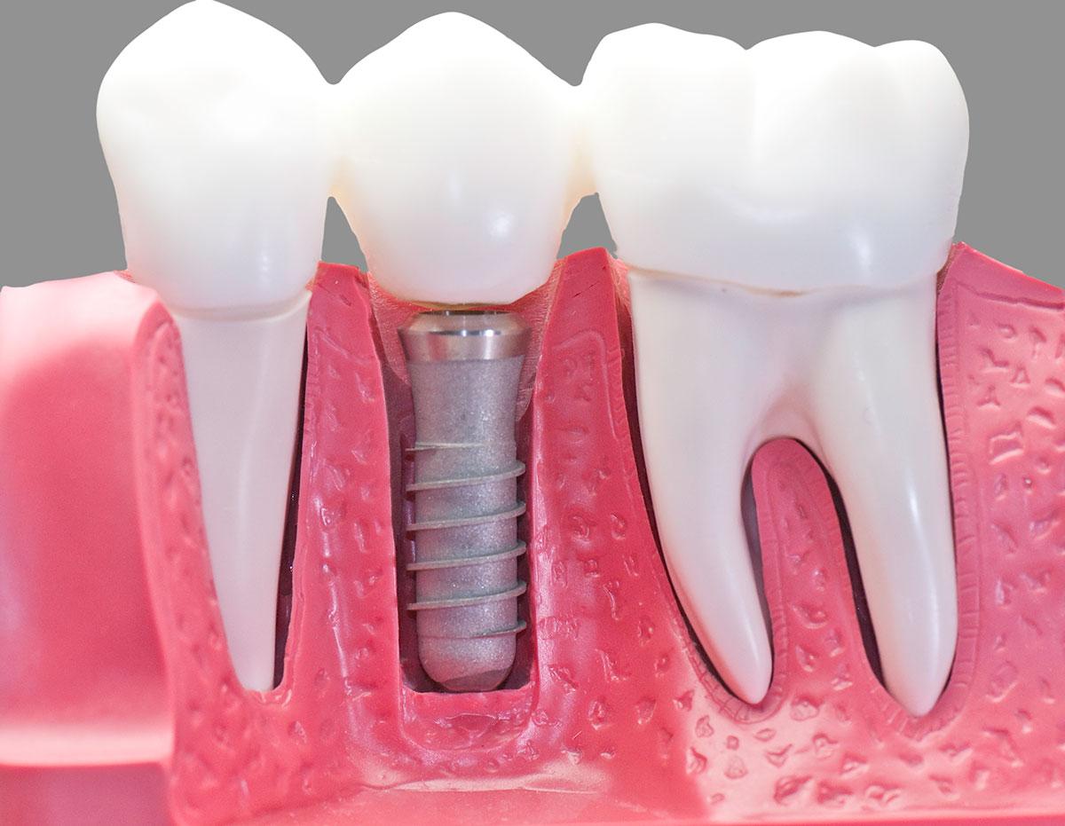 Implantología Consiste en implantar una raíz artificial, normalmente de titaneo