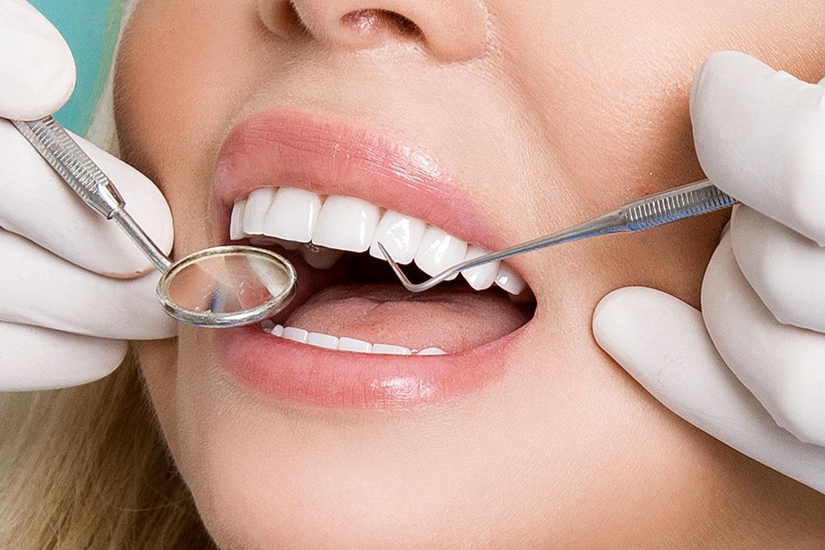 Obturación Conocido como empaste, se basa en restaurar la estética y funcionalidad omega dental torremolinos