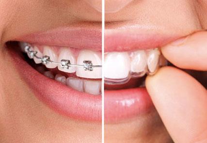 Ortodoncia Un tratamiento ortodóncico para mejorar tanto la estética clinica dental omega torremolinos