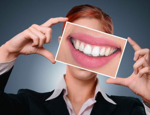 Carilllas dentales y tipología
